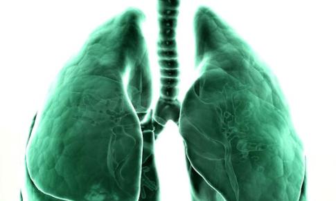 Pneumonia Komunitas, Cegah sebelum Tertular